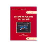 Ultrasonografie vasculara